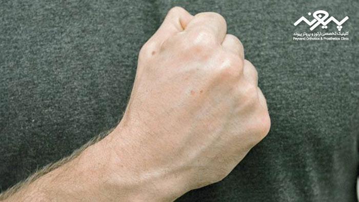درمان خانگی آرتروز دست