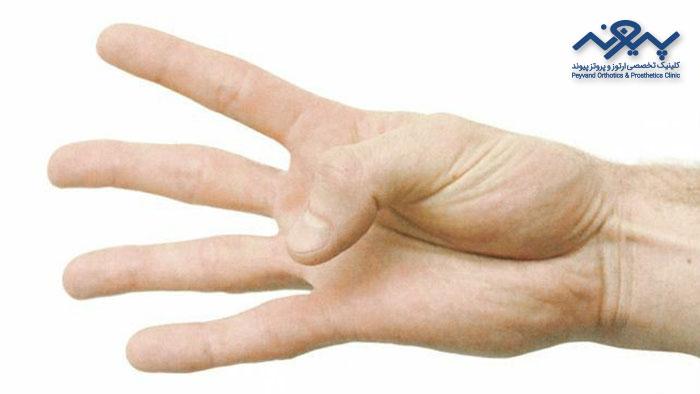 تمرین برای تسکین درد دست