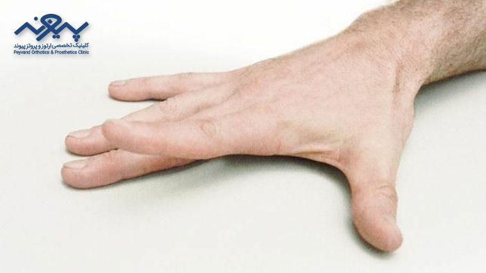 درد مفاصل دست
