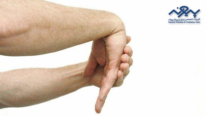درمان آرتروز دست