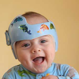 ارتوزهای-کرانیال-برای-نوزادان-مبتلا-به-پلاژیوسفالی-و-براکیسفالی