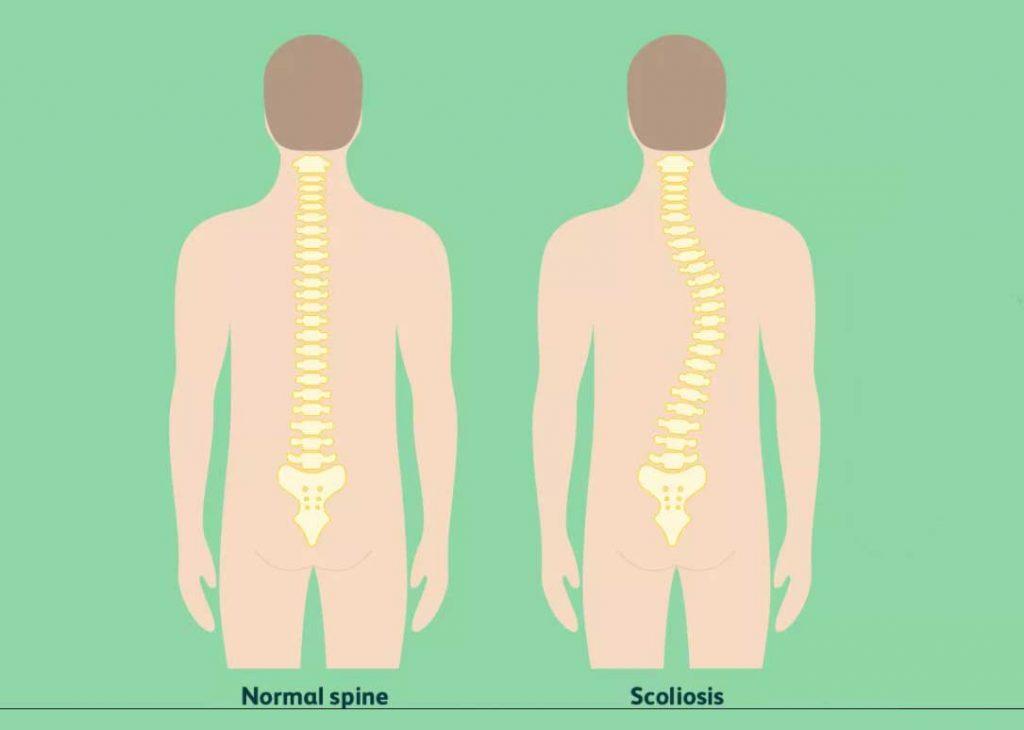 اسکولیوز عصبی عضلانی