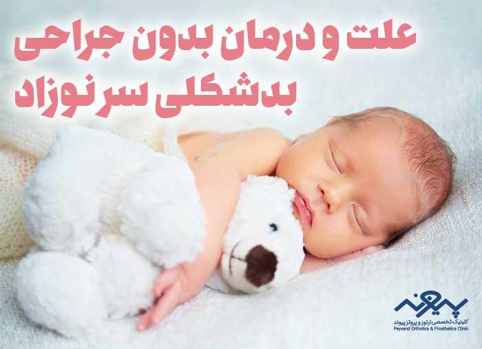 بدشکلی-سر-نوزاد
